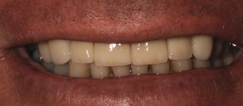 man's teeth after vero beach dentistry