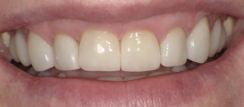 ec after vero beach dentistry