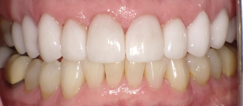 laura teeth after vero beach dentistry