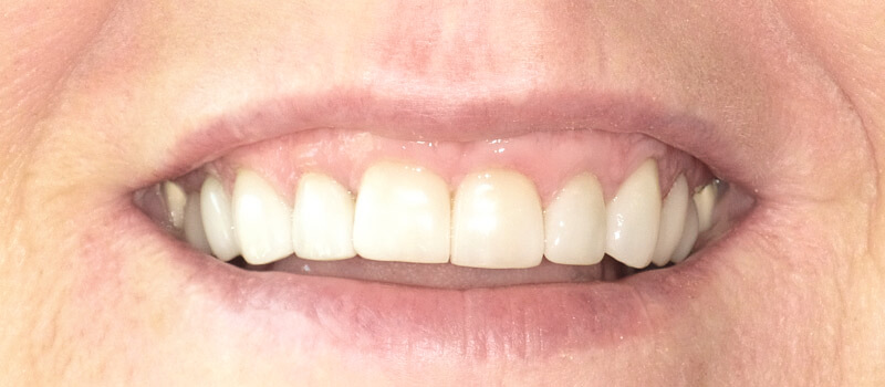 smile of a woman before vero beach dentistry