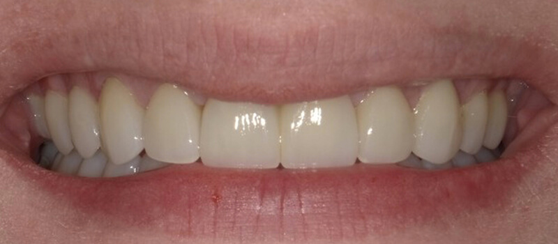 vero teeth after dentistry