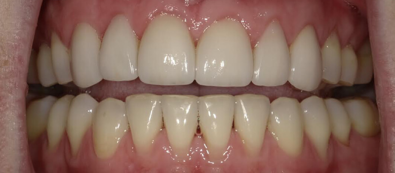 teeth after vero beach dentist
